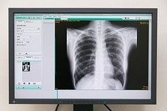 胸腹部単純レントゲン検査